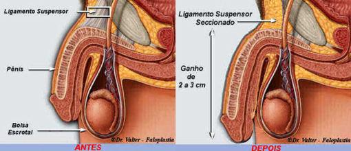 Peito de implantes em quantos anos